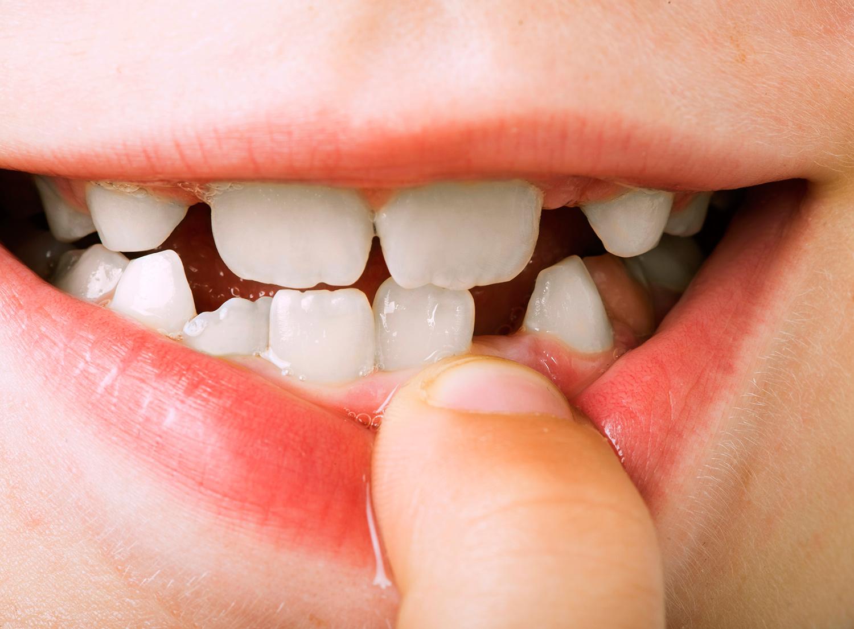 Zähne nachwachsen bleibende können Wachsen Zähne